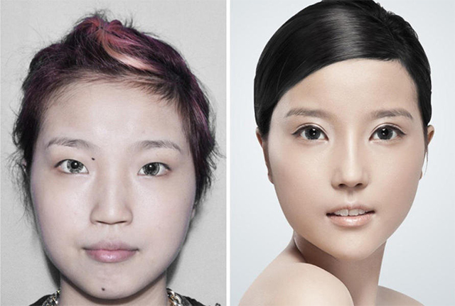 In China Plastic surgery is booming